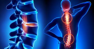 ErgoFit Sports Chiropractic